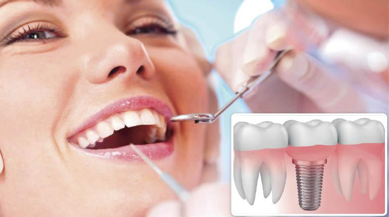 implantes dentales clinica jaimei catarroja